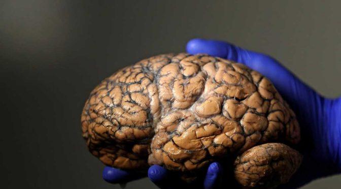Информацию из мозга планируют перенести в «облако»